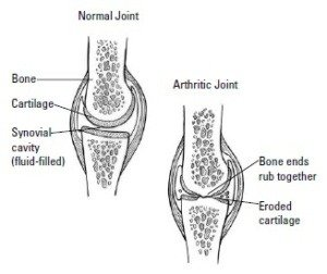 arthritis joint pain